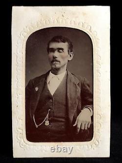 1/6 Plate Tintype Very Rare Medical Image Blind Man Missing Eyes Must See